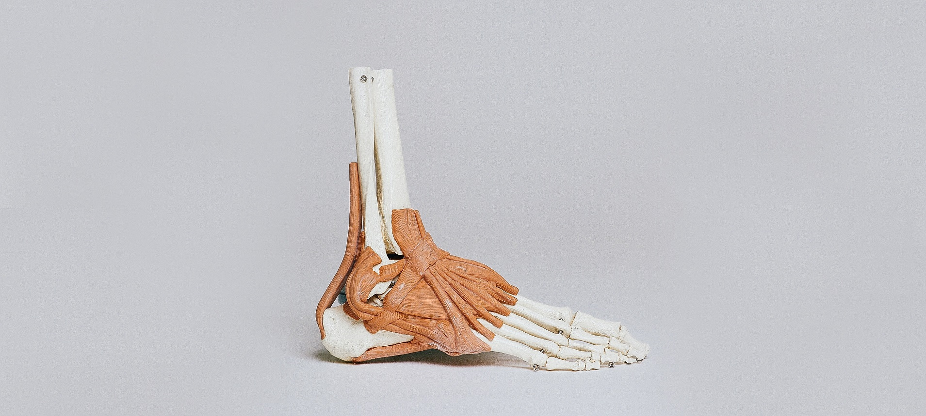 What is a Tarsal Coalition and how can it affect a Runner's foot