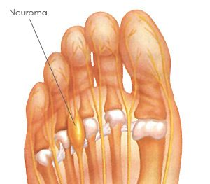 Commonly injured structures in the foot from running #3 Peripheral Nerves