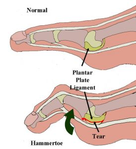 Commonly injured structures of the foot from running #4 Plantar Plate.